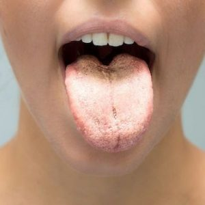 Woman with an open mouth. Candiasis programa pack & treatment.